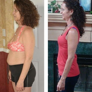 Lynn Mahler - BEFORE and AFTER - side view x300