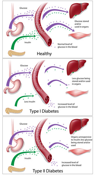 diabetes chart: type 1 and type 2 diabetes